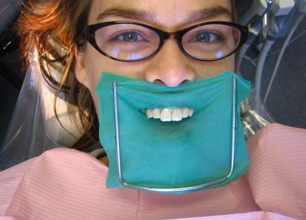 Lady with weird dental work